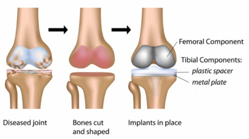 Total knee replacement – The procedure & success rate.
